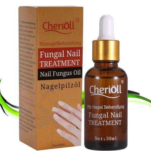 Fungal Nail Treatment,Nail Antifungal Treatment,Anti-Fungal Solution ...